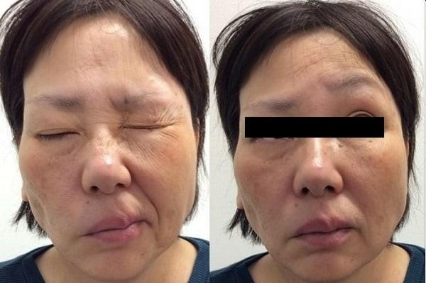 Yếu liệt cơ vùng mặt là một trong những triệu chứng nặng của bệnh