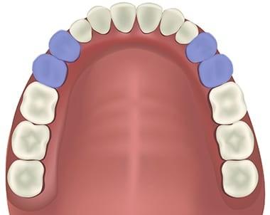 răng cối nhỏ hàm trên