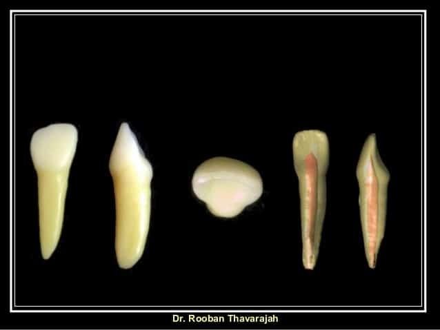 Răng cửa bên hàm dưới