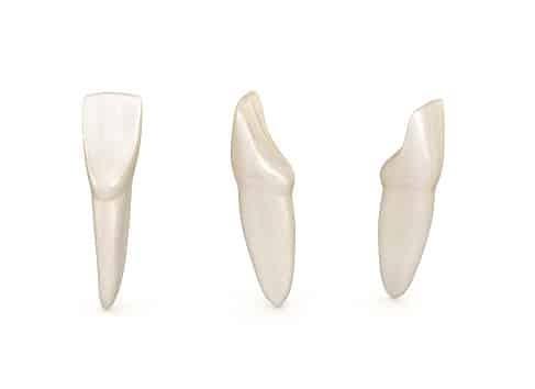 răng cửa giữa hàm dưới