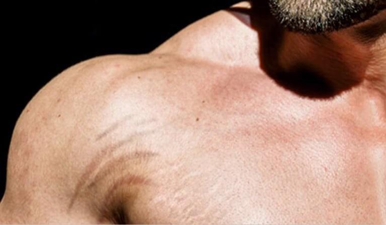 Vết rạn da ở cánh tay do tập gym