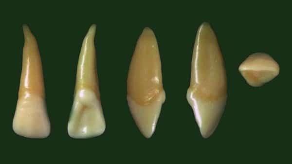 Răng cửa bên hàm trên