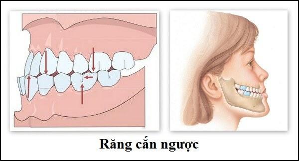 Tình trạng răng cắn ngược