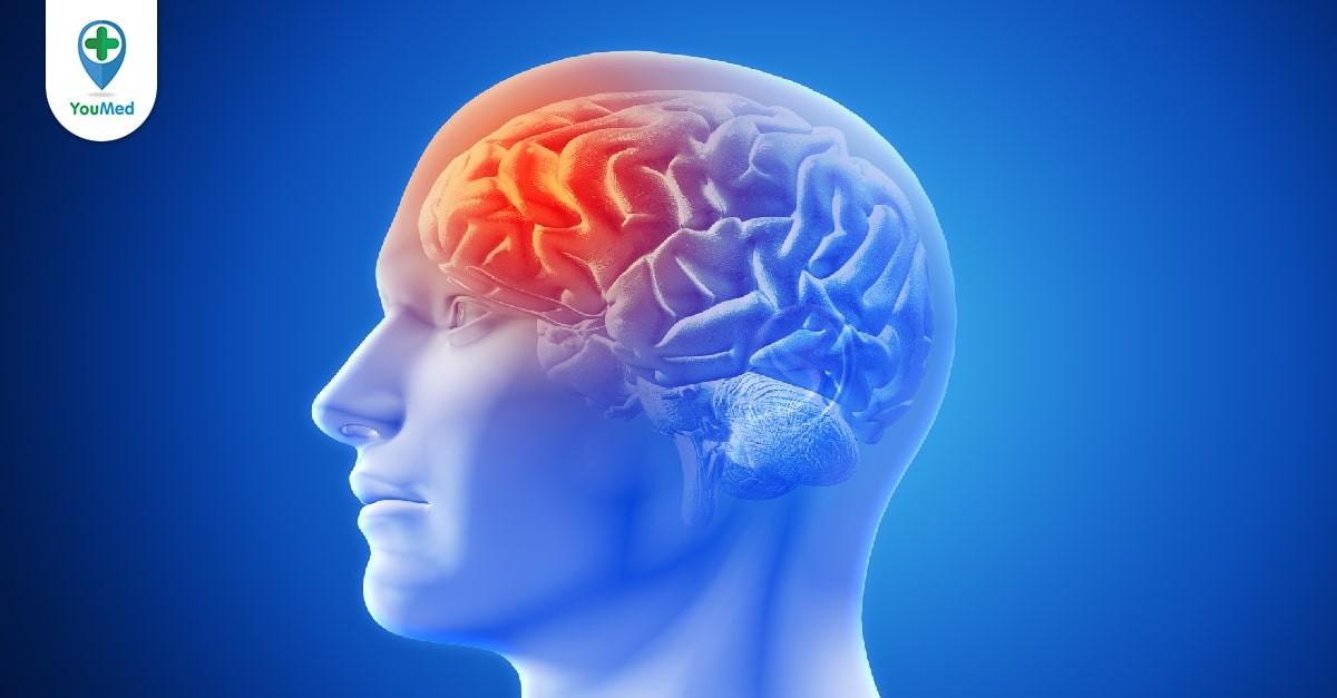 Rối loạn chức năng não