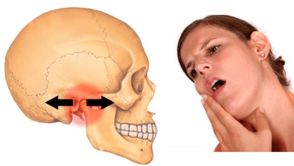 Nguyên nhân của rối loạn khớp thái dương hàm thường không rõ ràng
