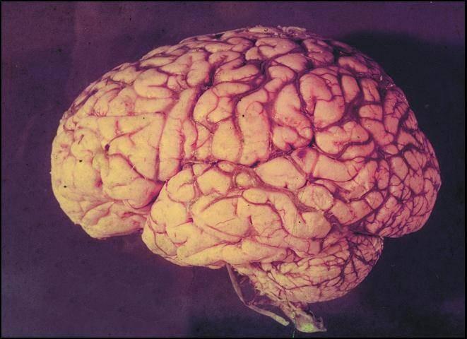 Bạn có nguy cơ mắc bệnh cao hơn nếu gia đình có tiền sử mắc chứng trí nhớ