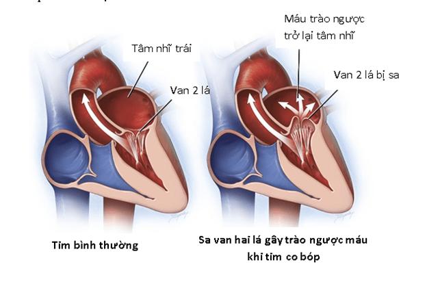 Sa van hai lé gây trào ngược máu khi tim co bóp