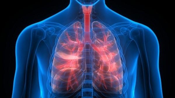 Tăng áp phổi là một biến chứng có thể gây tử vong