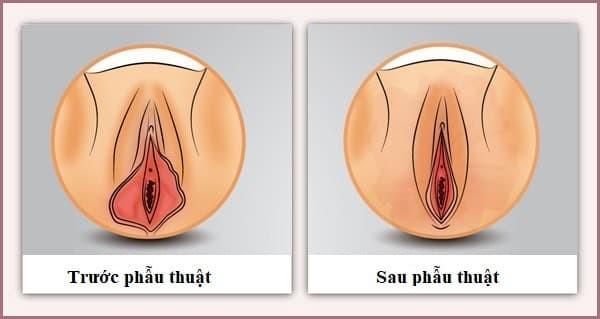 Hình ảnh trước và sau kh phẫu thuật tạo hình môi bé