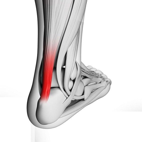Gân gót ở sau gót chân, gân gót ngắn có thể gây ra tật đi nhón chân ở trẻ.