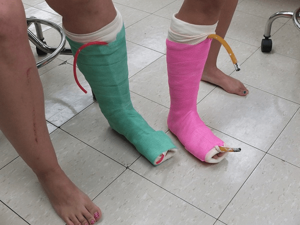 Bó bột chân từng đợt