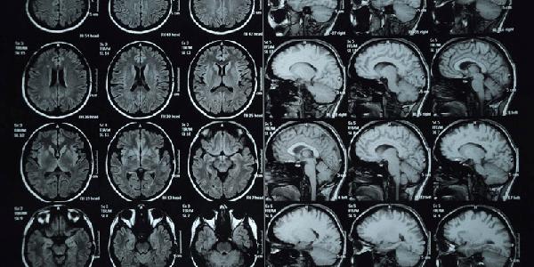Chất cản quang có chứa gadolinium khi chụp MRI có thể là nguyên nhân gây bệnh