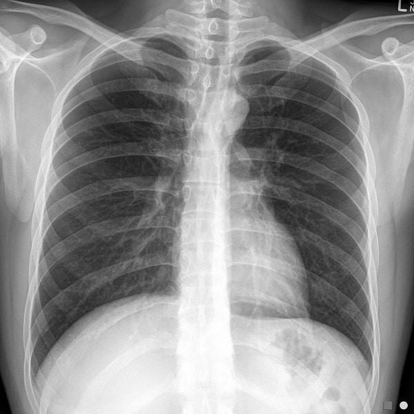 Chụp X quang giúp đánh giá tình trạng tim trong bệnh thông liên nhĩ