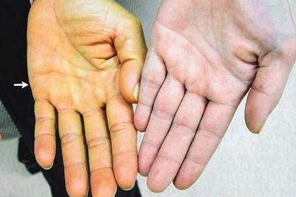 Triệu chứng vàng da tuy hiếm gặp nhưng vẫn có khả năng xảy ra