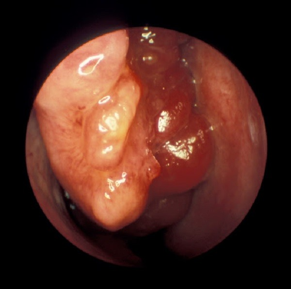 Hình ảnh nội soi phát hiện khối u vùng mũi trong.