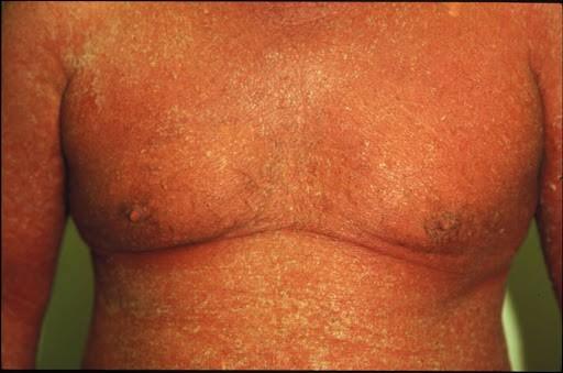 Triệu chứng của bệnh vảy phấn đỏ nang lông