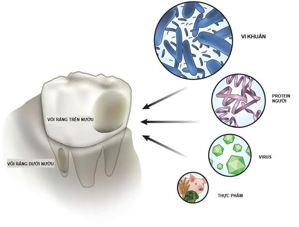 thành phần trong mảng bám trên bề mặt vôi răng