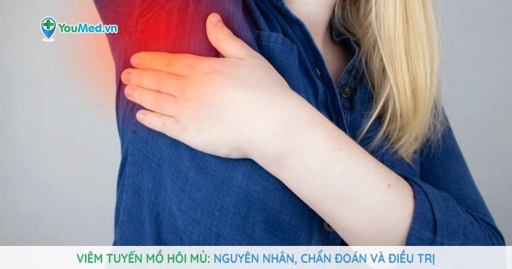 Viêm tuyến mồ hôi mủ: Nguyên nhân, chẩn đoán và điều trị