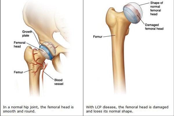 Đầu xương đùi bình thường và trong bệnh lý