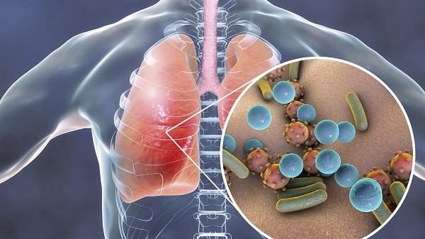 Có nhiều nguyên nhân dẫn tới viêm đường hô hấp dưới