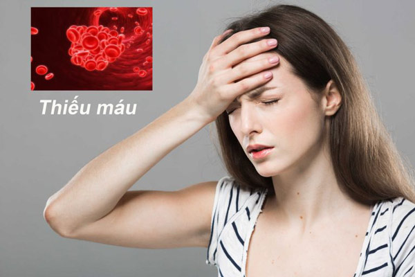 Thiếu vitamin B2 có thể gây thiếu máu