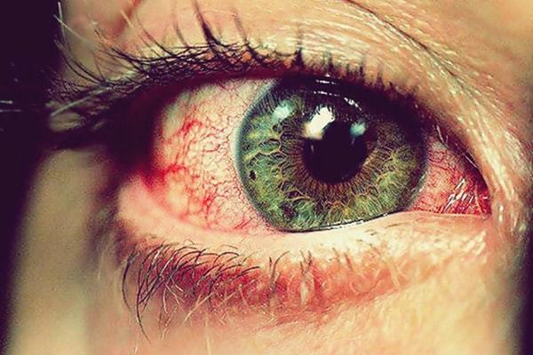 Đỏ, ngứa mắt khi thiếu vitamin B2