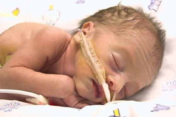 Trẻ sơ sinh thiếu hụt riboflavin