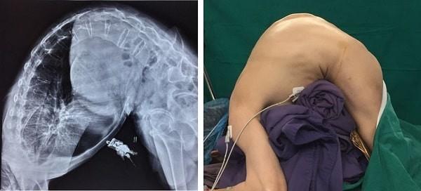 Hình ảnh X-quang một trường hợp gù nặng