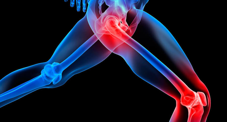 Đây là thuốc dùng trong trường hợp thoái hóa khớp hông hoặc gối