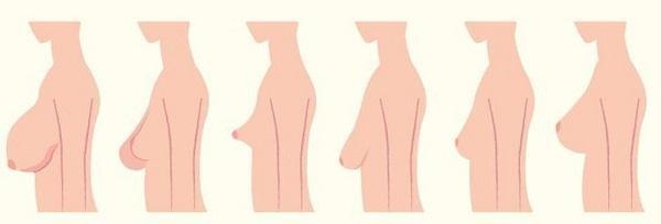 Các hình dạng núm vú khác nhau