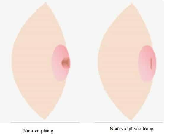 Hình ảnh núm vú bị tụt vào trong so với bình thường