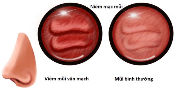 Niêm mạc mũi trong viêm mũi vận mạch