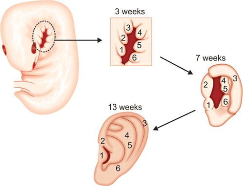 Sự phát triển của sáu ụ His để tạo thành vành tai hoàn chỉnh