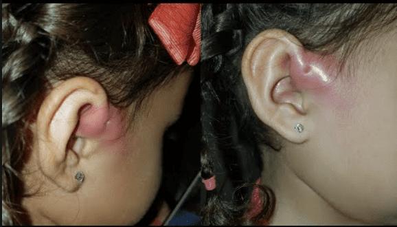 Nhiễm trùng lỗ rò luân nhĩ, biểu hiện với sưng nóng đỏ đau vùng rò.