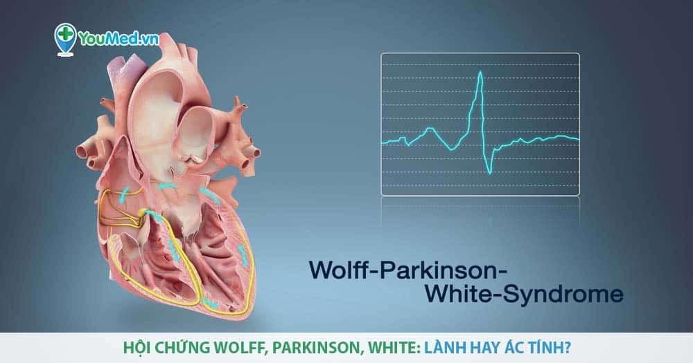 Hội chứng Wolff, Parkinson, White: là bệnh gì?