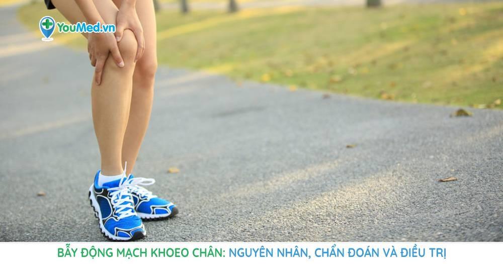 Bẫy động mạch khoeo chân: Nguyên nhân, chẩn đoán và điều trị