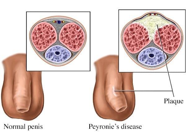 Bệnh Peyronie - gây bệnh liệt dương