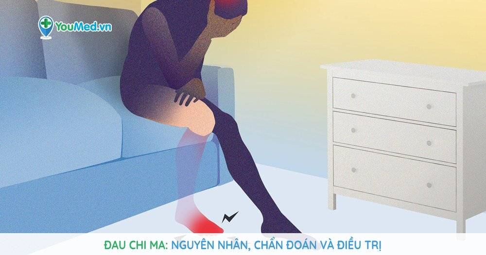 Đau chi ma: Nguyên nhân, chẩn đoán và điều trị