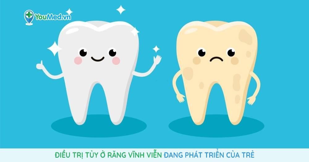 Điều trị tủy ở răng vĩnh viễn đang phát triển của trẻ