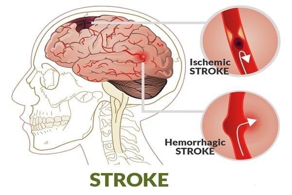 Đột quỵ có thể gây tổn thương thùy đỉnh