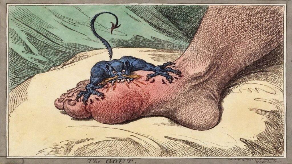 đậu xanh có thể chữa bệnh gút