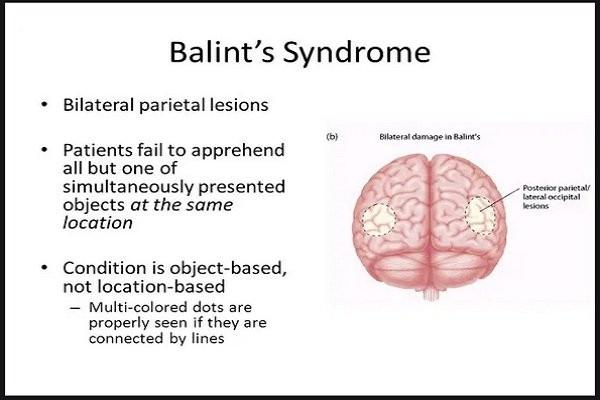 Hội chứng Balint