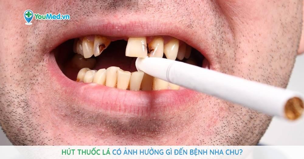 Hút thuốc lá có ảnh hưởng gì đến bệnh nha chu?