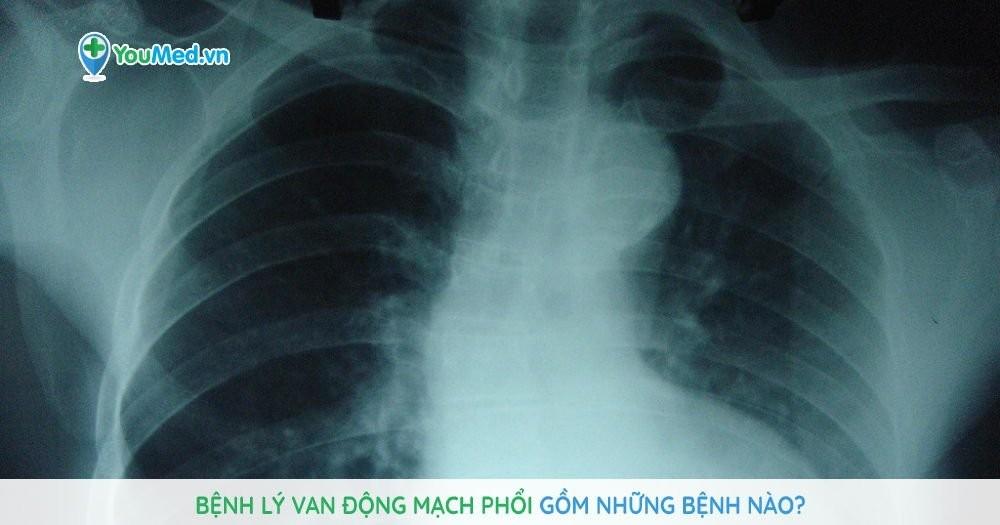 Bệnh lý van động mạch phổi gồm những bệnh nào?