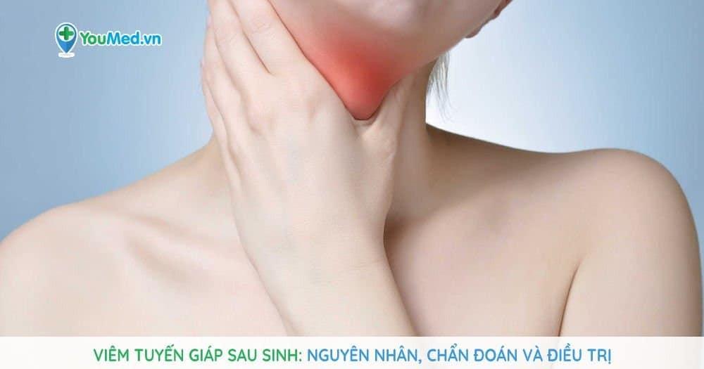Viêm tuyến giáp sau sinh: Nguyên nhân, chẩn đoán và điều trị