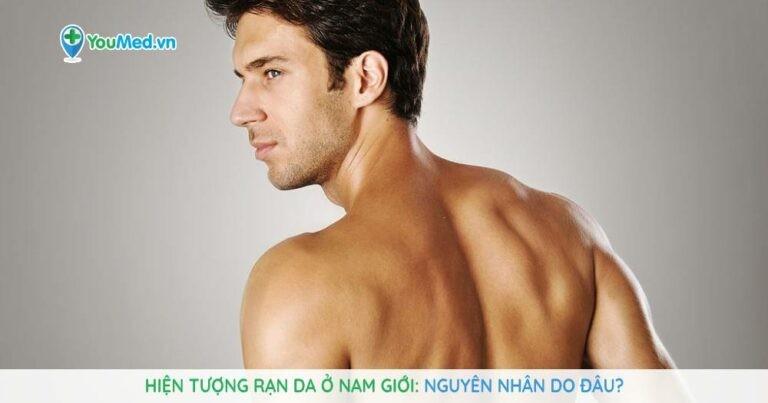 Hiện tượng rạn da ở nam giới: nguyên nhân do đâu?