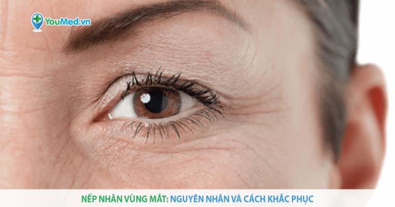 Nếp nhăn vùng mắt có dễ xóa hay không