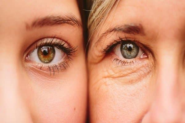 Nếp nhăn vùng mắt