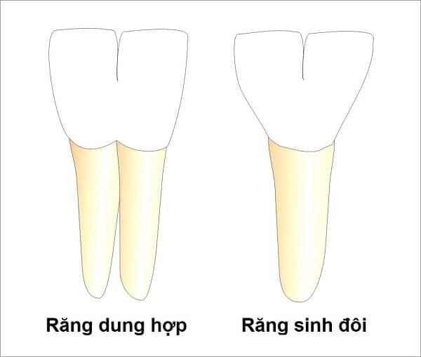 Bất thường mọc răng