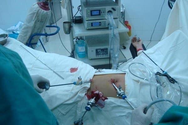 Phẫu thuật nội soi cắt ruột thừa là phương pháp điều trị được áp dụng rộng rãi hiện nay.